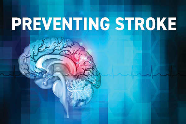 Stroke: What is it, Who is at Risk, and How Should You Take Action?